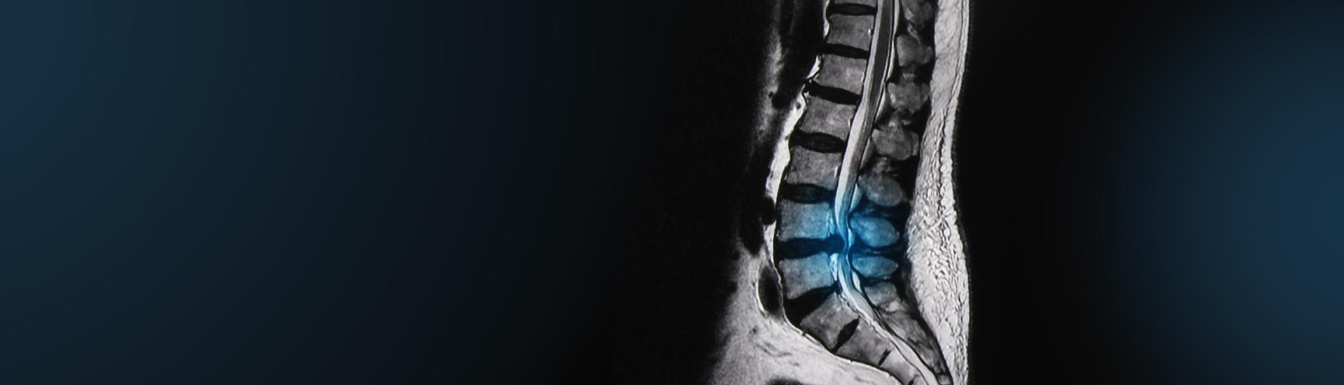 CT-gezielte Schmerztherapie