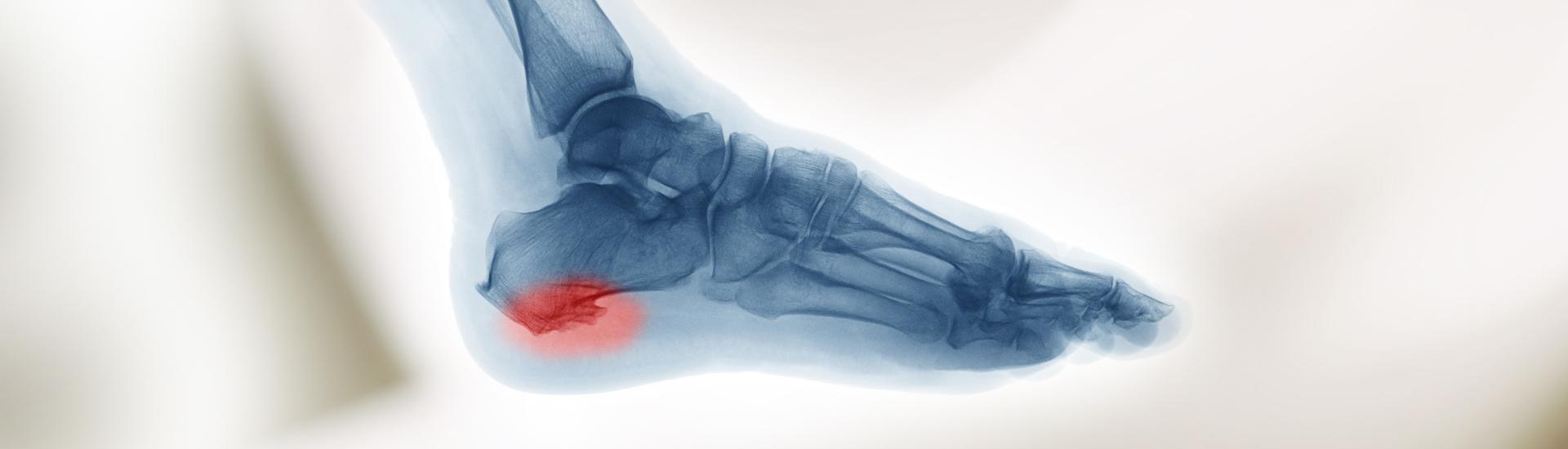 Röntgentherapie